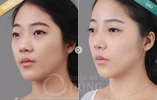 Hình ảnh trước sau thẩm mỹ mũi 10
