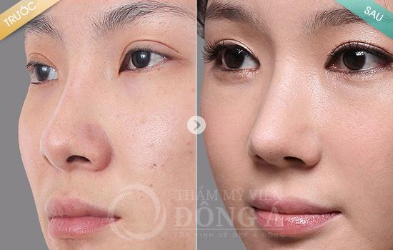 Hình ảnh trước sau thẩm mỹ mũi