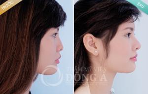 Hỏi – đáp chuyên gia: Nâng mũi không phẫu thuật giữ được bao lâu?