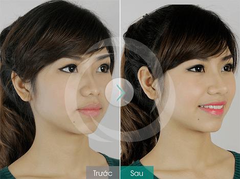 Hình ảnh trước sau nâng mũi không phẫu thuật