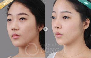 List các cách làm mũi cao tự nhiên – Giúp bạn thay đổi dáng mũi nhanh