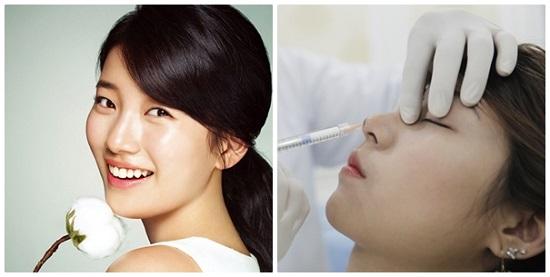 Nâng mũi không phẫu thuật có đau không và thời gian thế nào?