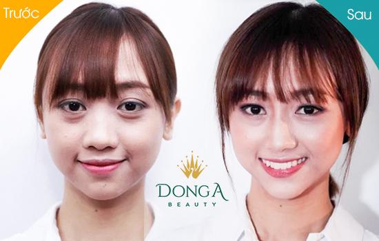 Hình ảnh trước và sau khi nâng mũi không phẫu thuật của Tuyết Anh