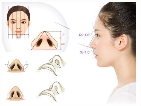 Phẫu thuật thu gọn cánh mũi to dày bằng kỹ thuật nội soi