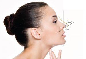 Bác sĩ trả lời: Thu gọn cánh mũi thế nào với cánh mũi mỏng?